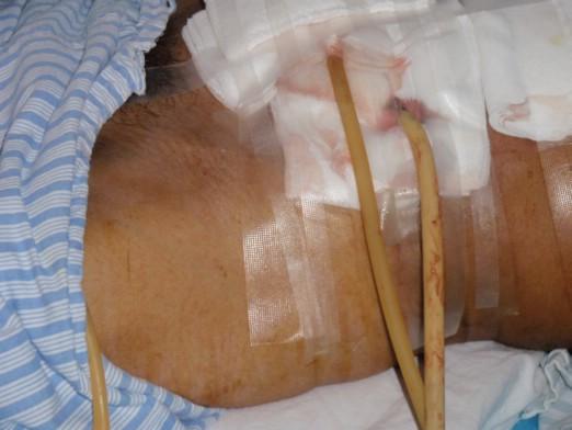 膀胱造瘘术手术步骤