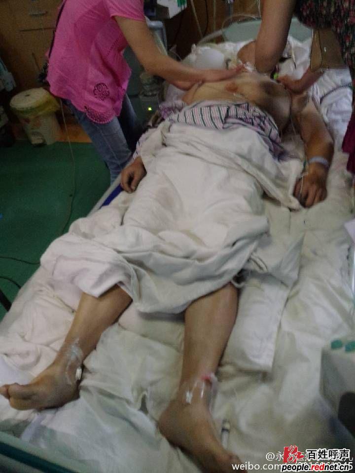 红网 - 百姓呼声 - 永州职业附属医院割扁桃体出